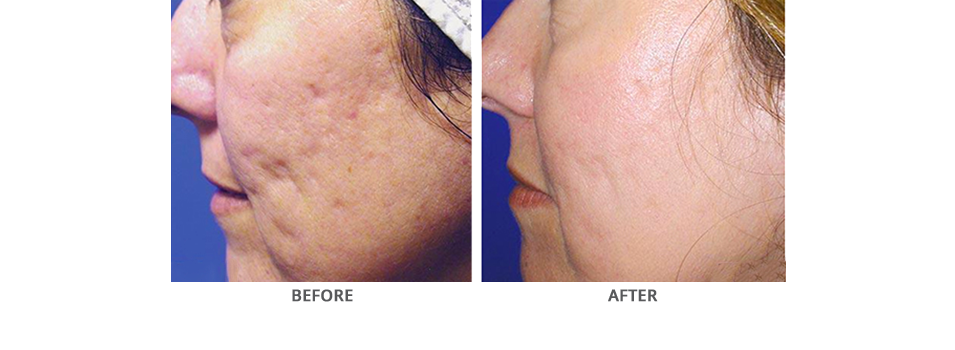 Fraxel Laser Before and After Photos