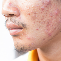 acne treatment in delaware county pa