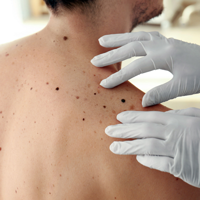 skin cancer screening in delaware county