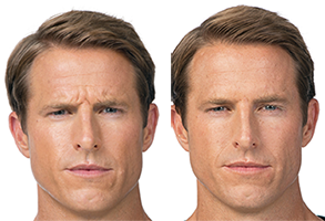 Men Botox Before and After