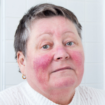 rosacea treatment in glen mills pa