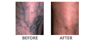 Sclerotherapy Treatment Before and After Glen Mills PA