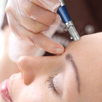 microneedling treatment in glen mills pa