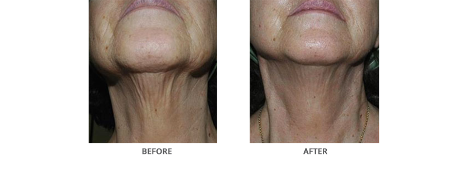 Sublative RF Rejuvenation in Glen Mills