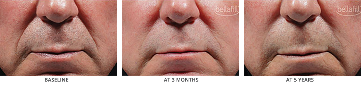 Bellafill Before and After for Nasolabial Lines