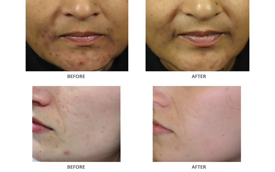 acne scar treatment in glen mills pa