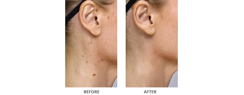 Eskata Treatment Before and After Glen Mills PA