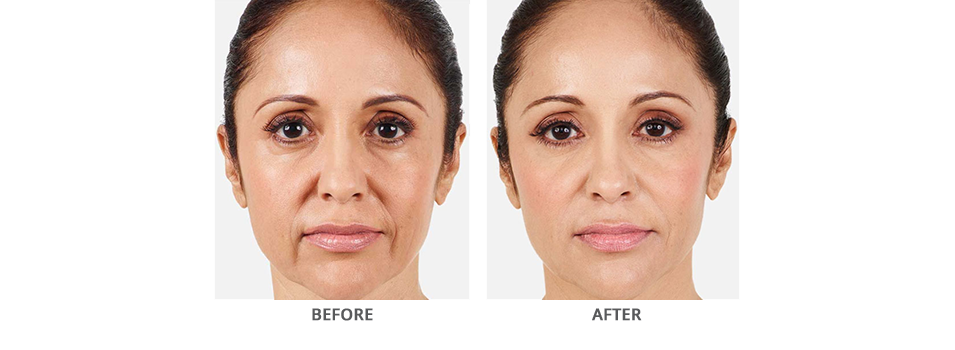 Juvederm Vollure Before and After Glen Mills PA